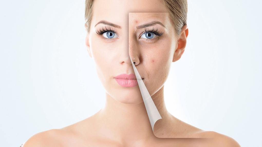 Акнето и почистване на лице от козметик