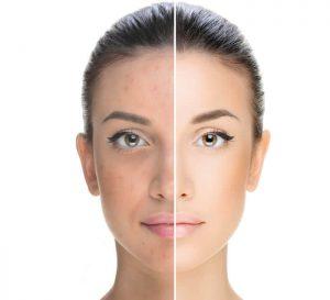 Liftosome - подмладяващ лифитнг с проколаген за сияйна кожа
