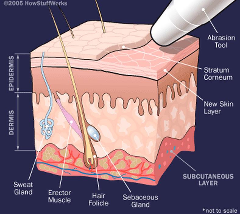 Диамантено микродермабразио за сияйна кожа