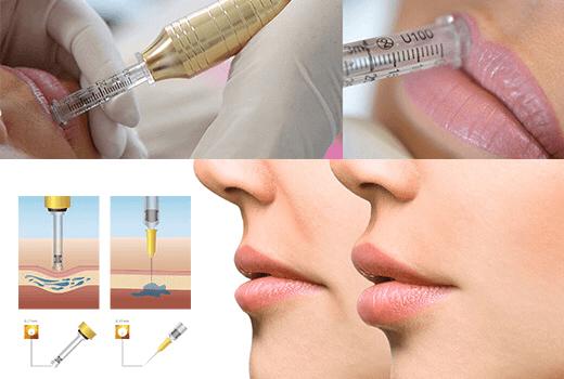 Терапия за поставяне на безиглен хиалурон за устни