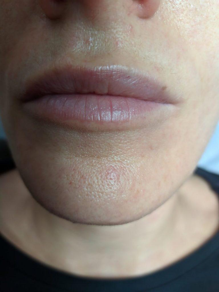 Безиглен хиалурон за устни - козметично студио Бургас